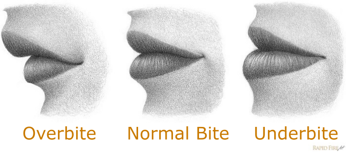 how-to-draw-lips-from-the-side_-overbite-normal-bite-underbite